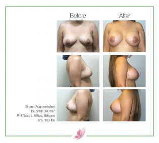 dr-shah breast-augmentation 138