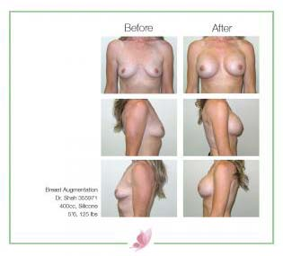 dr-shah breast-augmentation 139