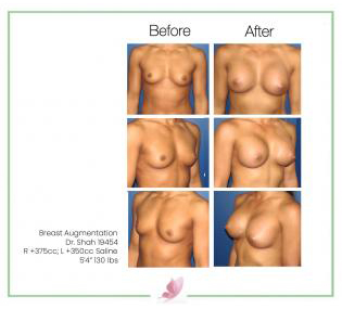 dr-shah breast-augmentation 14