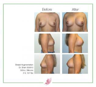 dr-shah breast-augmentation 140