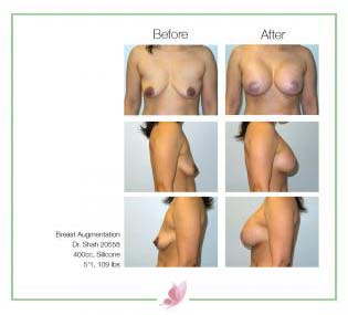 dr-shah breast-augmentation 141