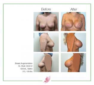 dr-shah breast-augmentation 142