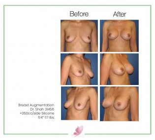 dr-shah breast-augmentation 15