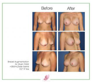 dr-shah breast-augmentation 16