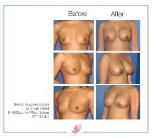 dr-shah breast-augmentation 17