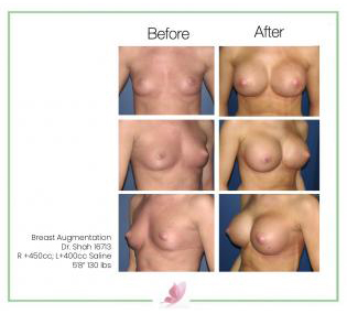 dr-shah breast-augmentation 18