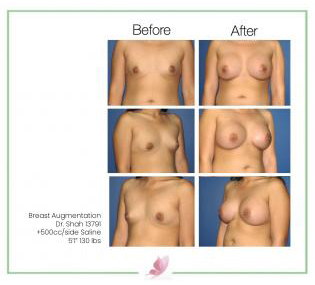 dr-shah breast-augmentation 19