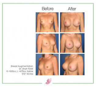 dr-shah breast-augmentation 2