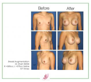 dr-shah breast-augmentation 20