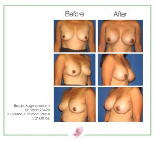 dr-shah breast-augmentation 21
