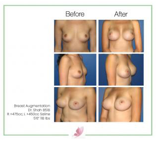dr-shah breast-augmentation 22