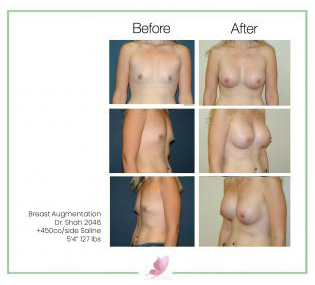 dr-shah breast-augmentation 23