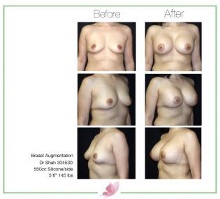 dr-shah breast-augmentation 24