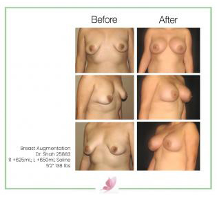 dr-shah breast-augmentation 25