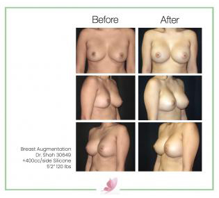 dr-shah breast-augmentation 26