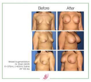 dr-shah breast-augmentation 27