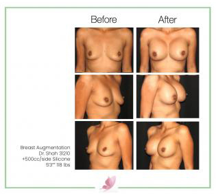 dr-shah breast-augmentation 28