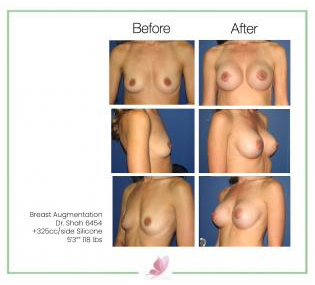 dr-shah breast-augmentation 29