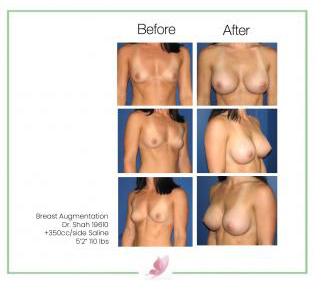 dr-shah breast-augmentation 3