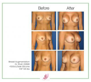 dr-shah breast-augmentation 30