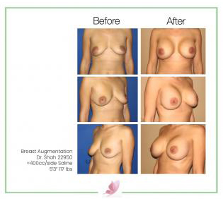dr-shah breast-augmentation 31