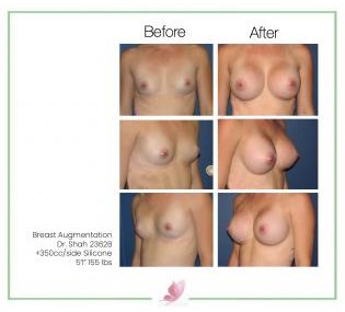 dr-shah breast-augmentation 32