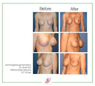 dr-shah breast-augmentation 33