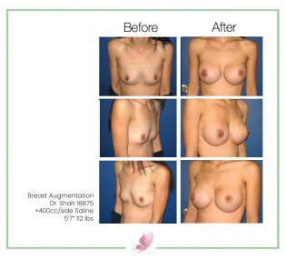 dr-shah breast-augmentation 34