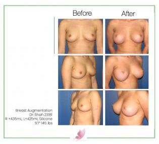 dr-shah breast-augmentation 35