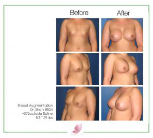 dr-shah breast-augmentation 36