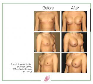 dr-shah breast-augmentation 37