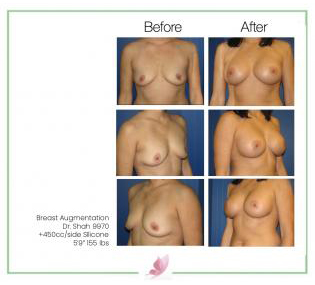 dr-shah breast-augmentation 38