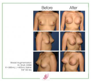 dr-shah breast-augmentation 39