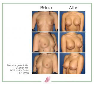 dr-shah breast-augmentation 4