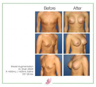 dr-shah breast-augmentation 40