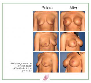 dr-shah breast-augmentation 41