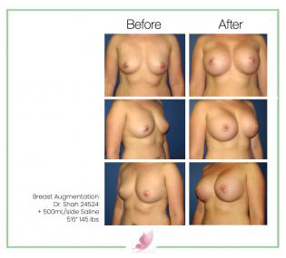 dr-shah breast-augmentation 42