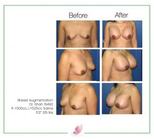 dr-shah breast-augmentation 43