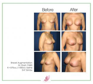 dr-shah breast-augmentation 44