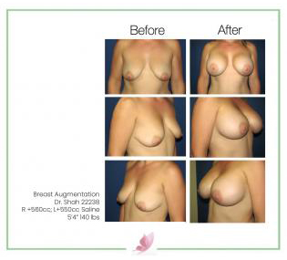 dr-shah breast-augmentation 45