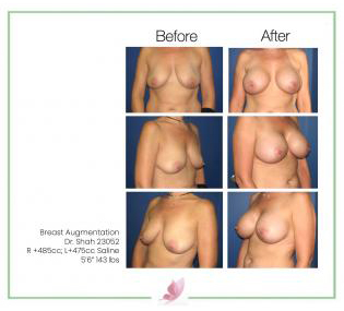 dr-shah breast-augmentation 46