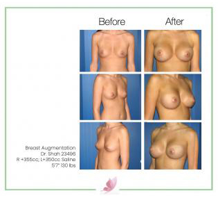dr-shah breast-augmentation 47