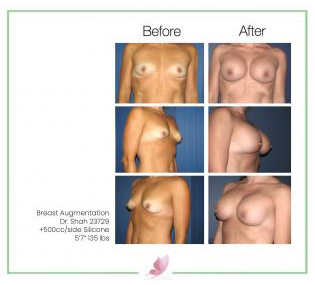 dr-shah breast-augmentation 48