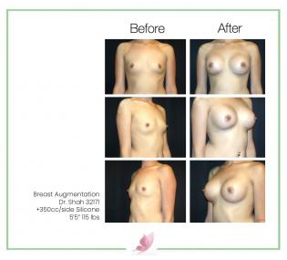 dr-shah breast-augmentation 49