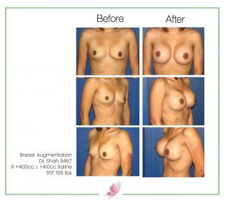 dr-shah breast-augmentation 5
