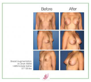 dr-shah breast-augmentation 50