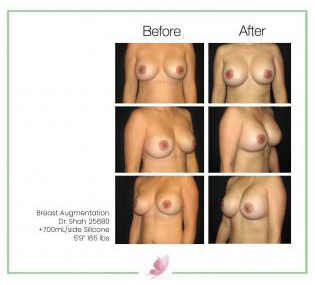 dr-shah breast-augmentation 51