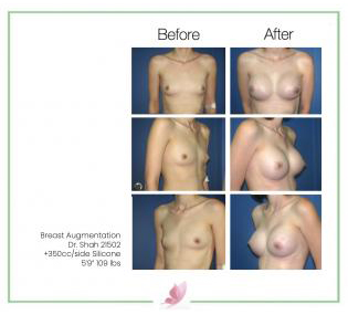 dr-shah breast-augmentation 52