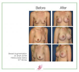 dr-shah breast-augmentation 53