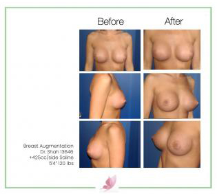 dr-shah breast-augmentation 54